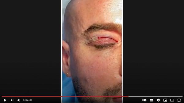 video blepharoplastie paris